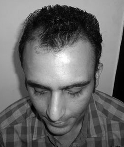 Jatin Sapru - before hair loss treatments
